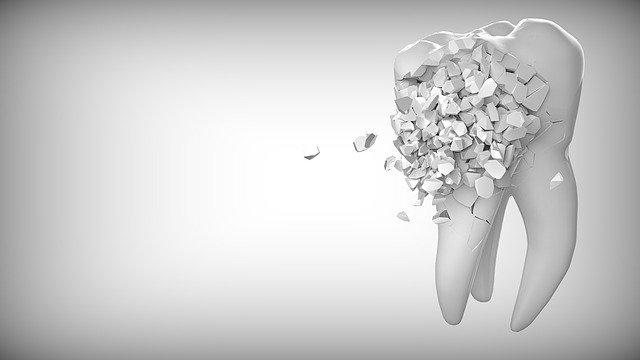 une dent