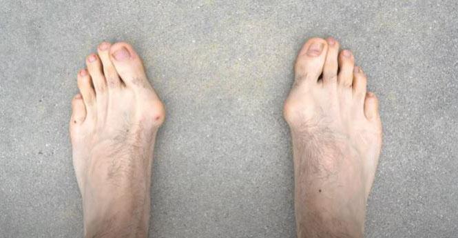 une photo qui montre des oignons aux pieds (maladie)