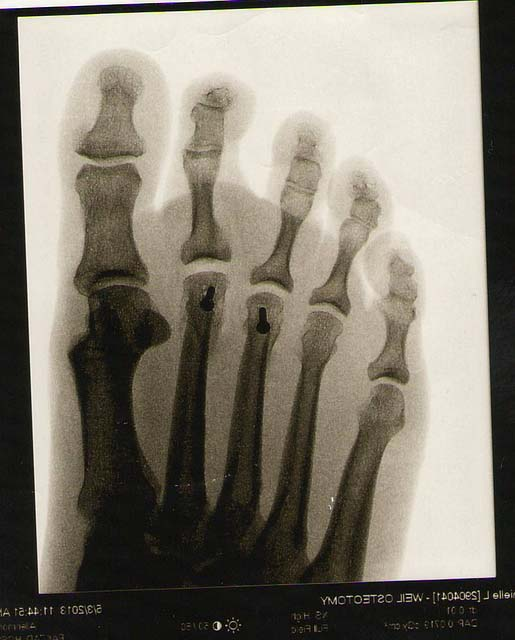 Radiographie du pied